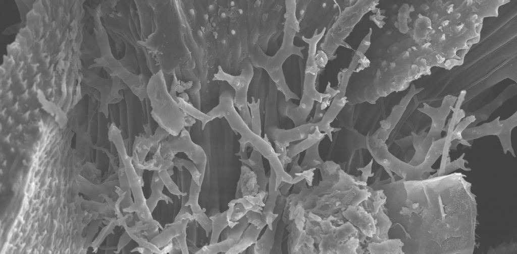 Forest moss and its microbes and atmospheric pollution