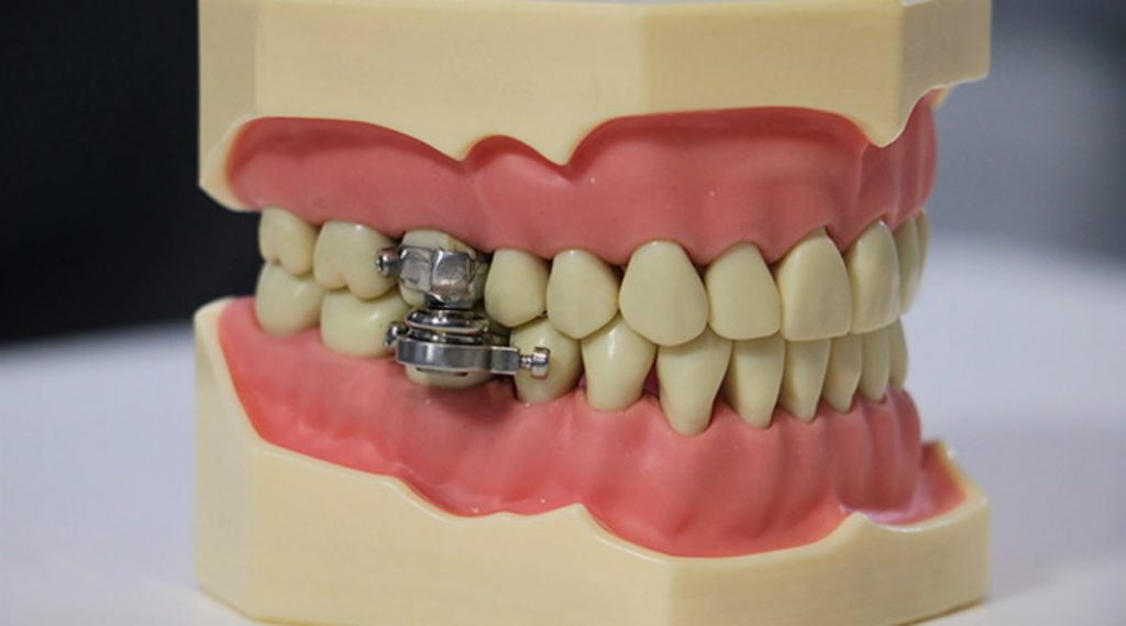 To fight obesity, a magnet arrives in New Zealand that clogs your jaw and prevents you from opening your mouth