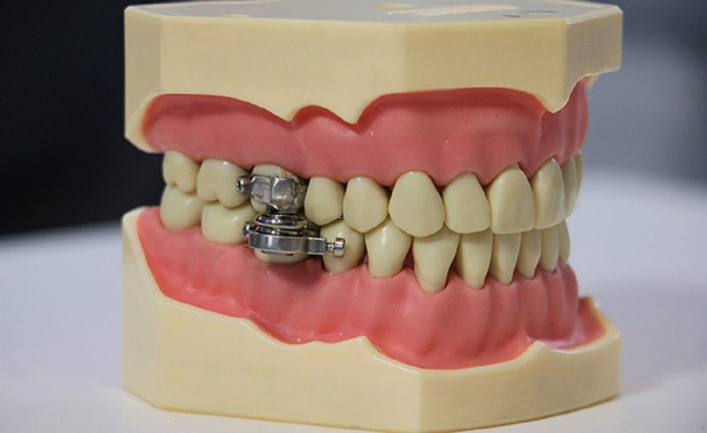 Magnet jaw locks New Zealand anti-obesity device جهاز
